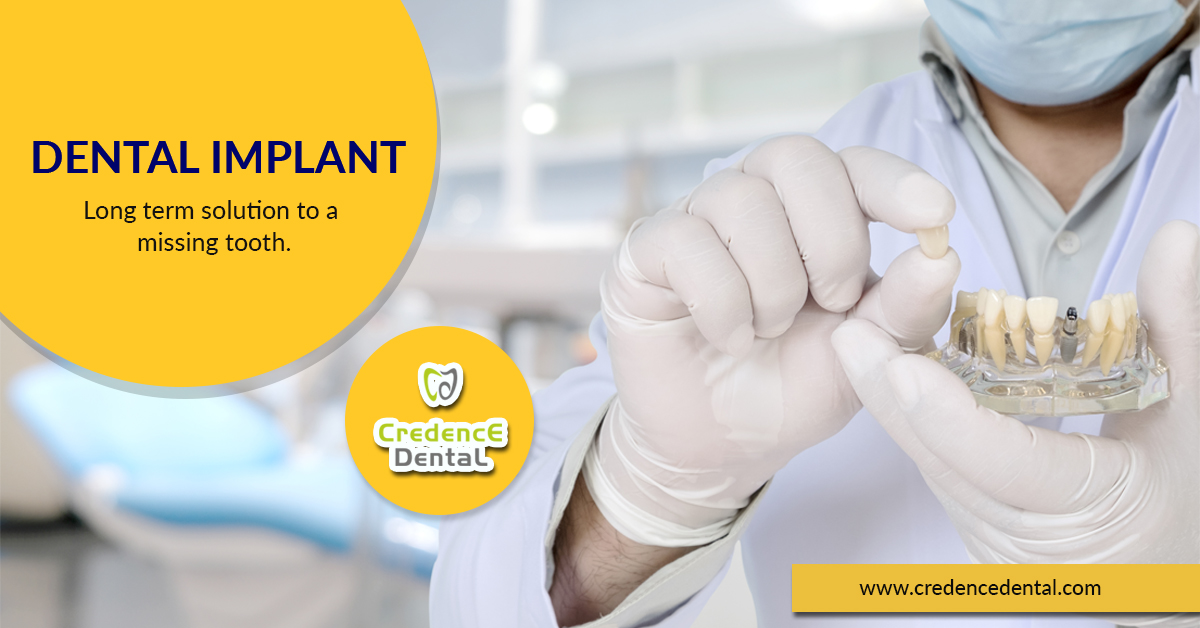 Welcome to Credence Dental, we are no.1 dental clinic in Bangalore, we are treating all dental health problems for teens, children, and adults. Credence Dental is Bangalore's friendly, professional, and affordable dental clinic. We have some of the best dentists, offering a wide range of services with personalized.  Why Choose Credence Dental clinic?   We are doing hygiene treatments, Dental check-ups, cosmetic dentistry, custom-made restorative treatments – such as crowns, veneers, and tooth bridge. Root canal treatment. Dental implant restoration. Professional teeth whitening. Invisalign treatment. Braces, Orthodontal, Dental implants, Root Canal Treatment, Teeth Whitening, Smile Makeover, and Smile Designing.  Clinic Name: Credence Dental Address: No 1132, 1st floor, Jawaharlal Nehru Rd, BEML Layout 3rd Stage, RR Nagar, Bengaluru, Karnataka 560098 Phone: 9141160212 Website: https://credencedental.com/